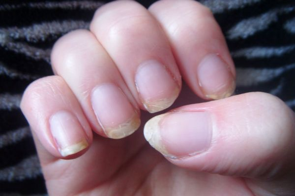 What-Causes-Brittle-Nails6