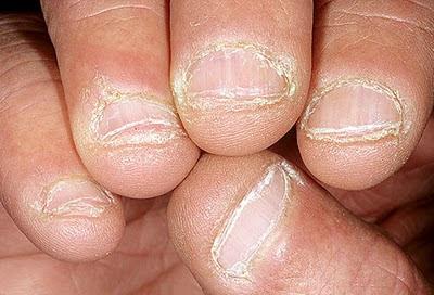 bệnh về móng tay