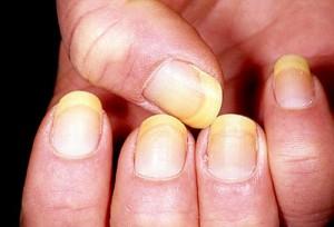 Sơn móng tay giả nguyên nhân gây ra những căn bệnh móng tay nguy hiểm