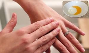 Chăm sóc da tay để đôi tay khô trở nên mềm mại