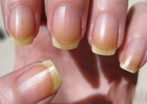 Bạn hiểu được sức khỏe của mình thế nào qua biểu hiện của bệnh móng tay?