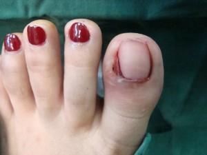 Bệnh móng tay, móng chân mọc ngược có thể ngăn chặn được